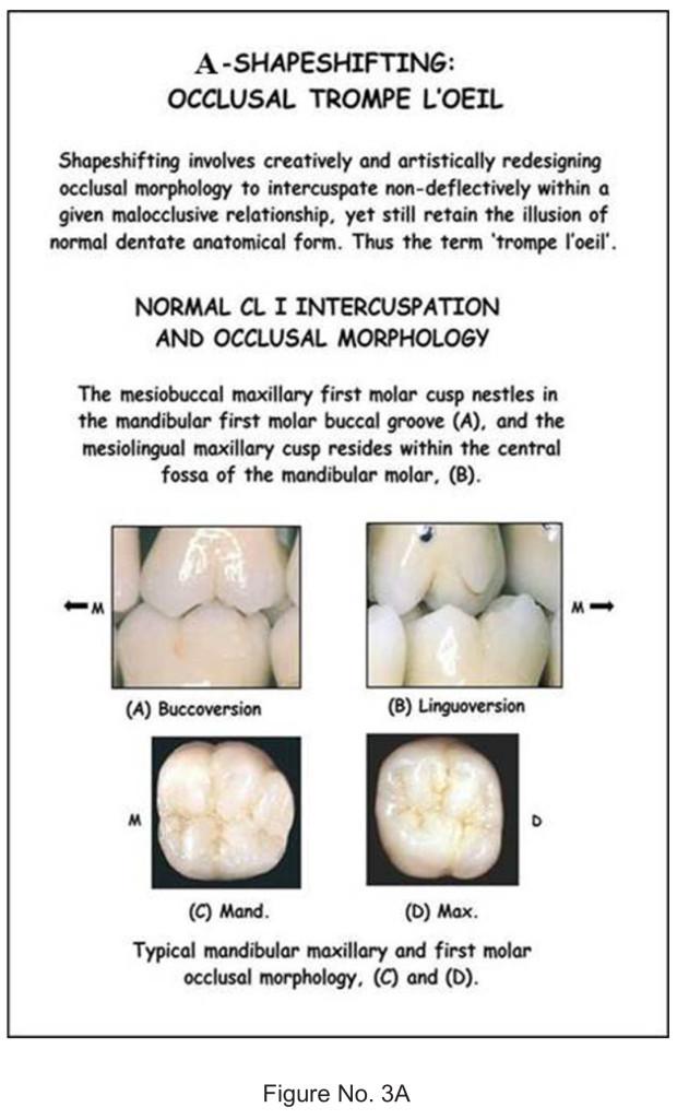Amazing Mandibular 1st Molar Anatomy Image - Anatomy And Physiology ...