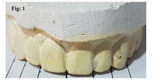 Golden Proportion and Golden Standard Assessment of